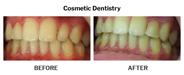 Cosmetic Dentistry Before And After Results