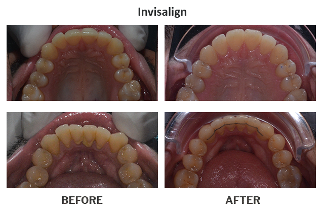 Treatment by Dr. Punit Thawani using Invisalign - Before And After Results