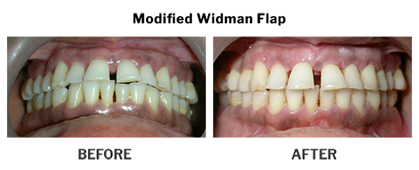 Treatment by Dr. Punit Thawani using Periodontics - Before And After Results