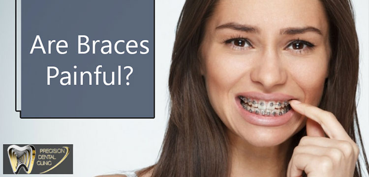 Are braces painful