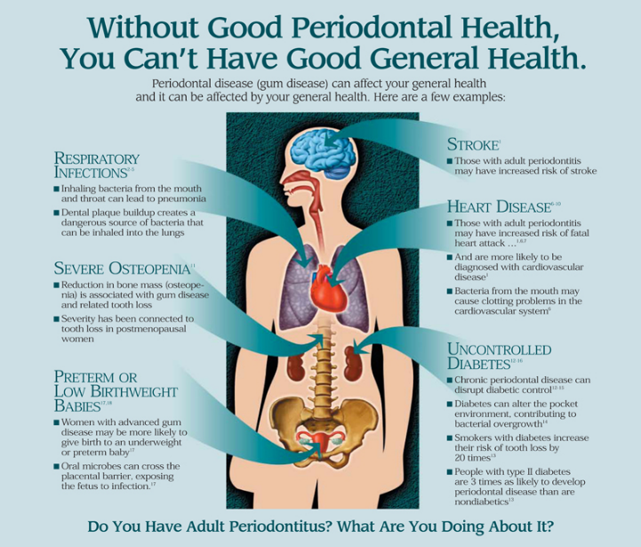 Without good periodontal-health-you-cant-have good general health