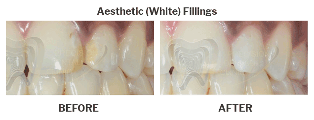Aesthetic white fillings case 01