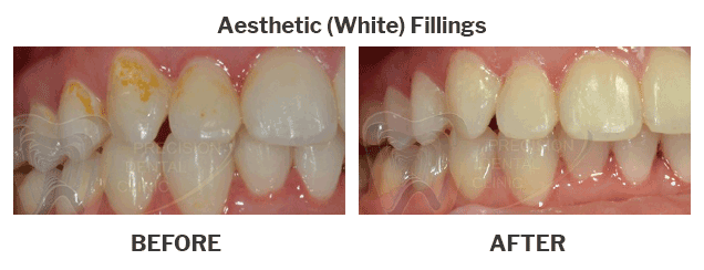 Aesthetic white fillings case 02