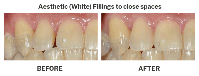 Aesthetic white fillings to close spaces
