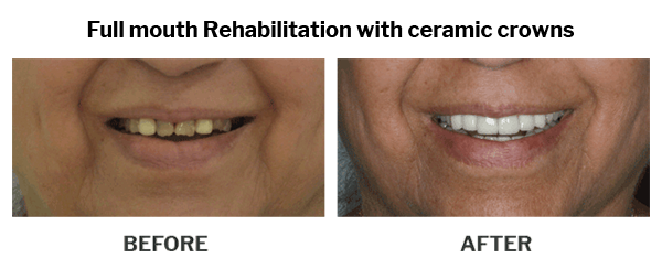Full mouth rehabilitation with ceramic crowns