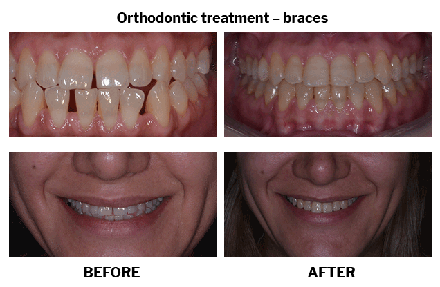 Orthodontic treatment braces case 06