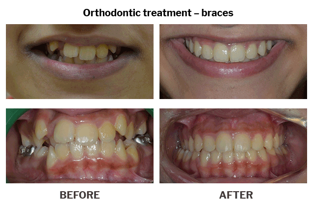 Orthodontic treatment braces case 09