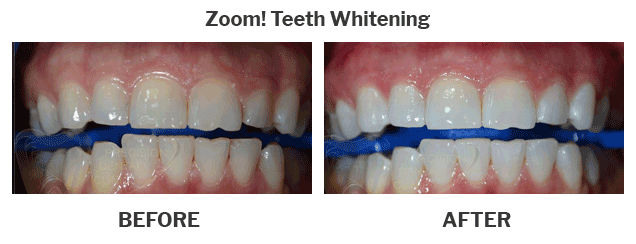 Zoo teeth whitening