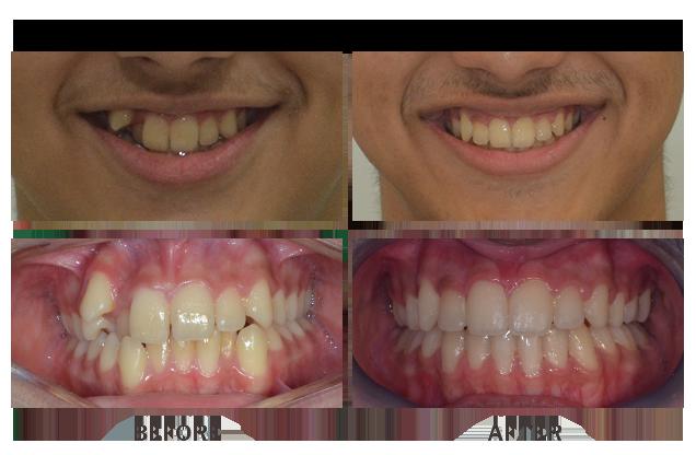 Orthodontic treatment braces case 10