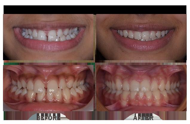 Orthodontic treatment braces case 11